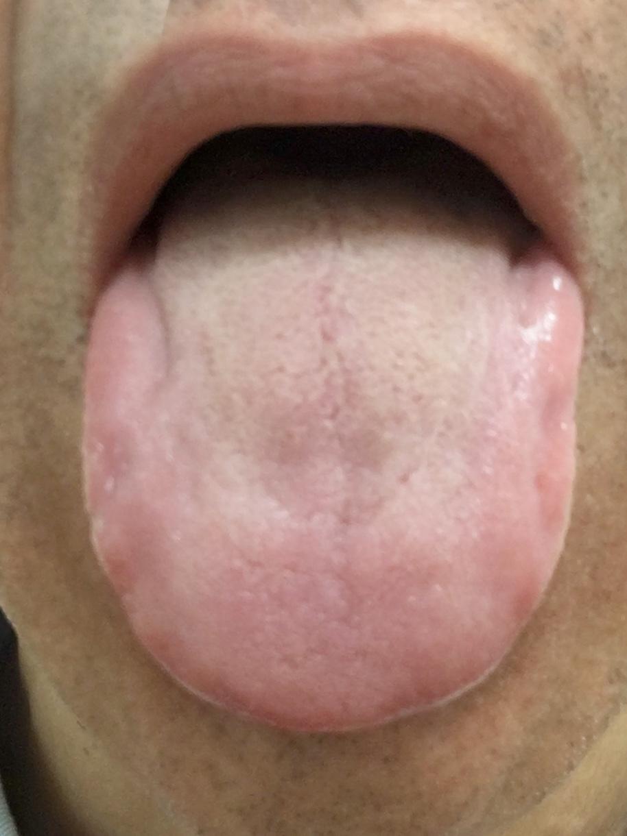 [ブログ]今日の舌。舌を見ればむくみなどの体調が分かる。