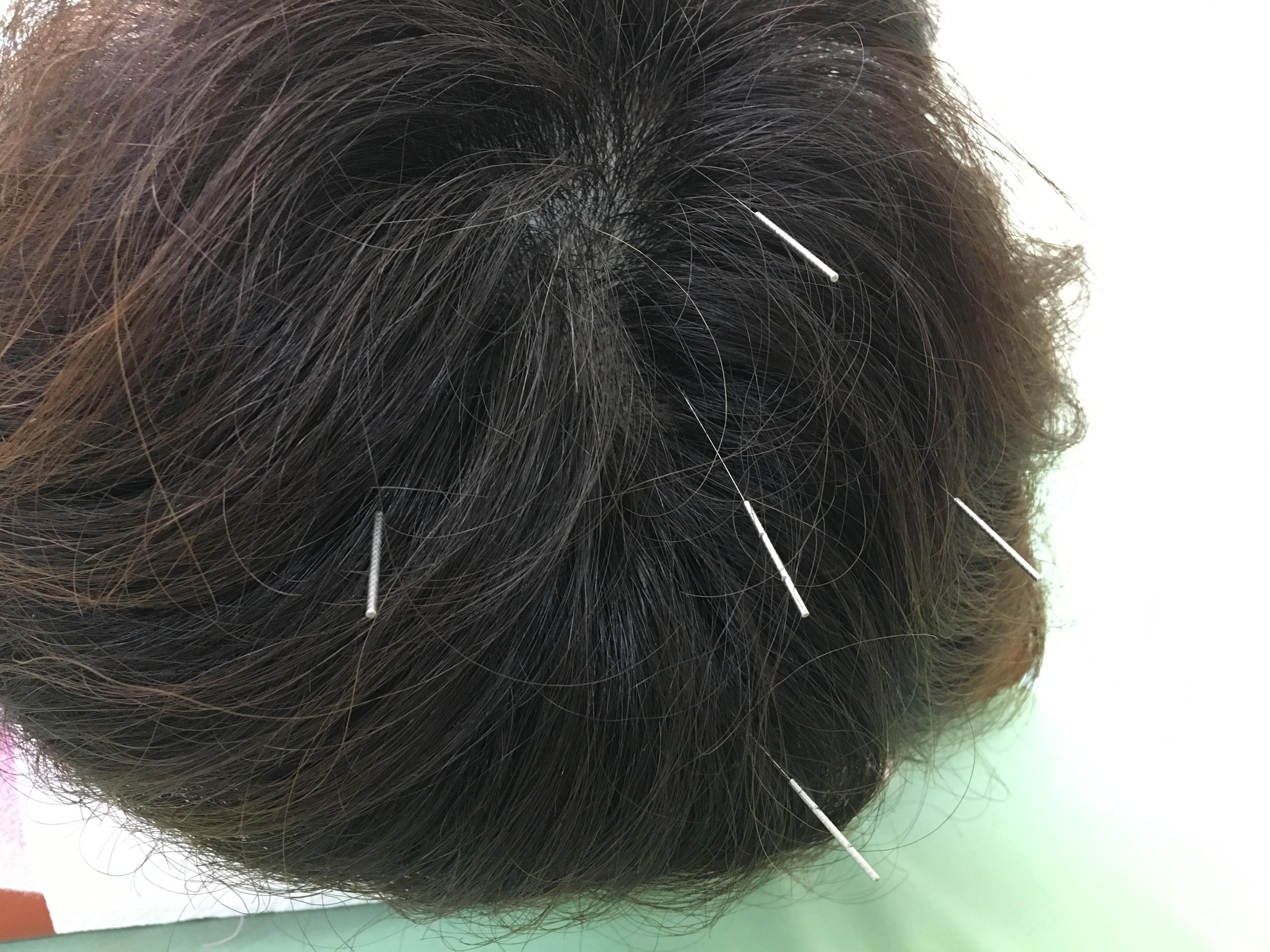 不眠症、浅眠りに効果的なツボ百会、四神総。自律神経や抜け毛にも良いです。(結果には個人差があります)