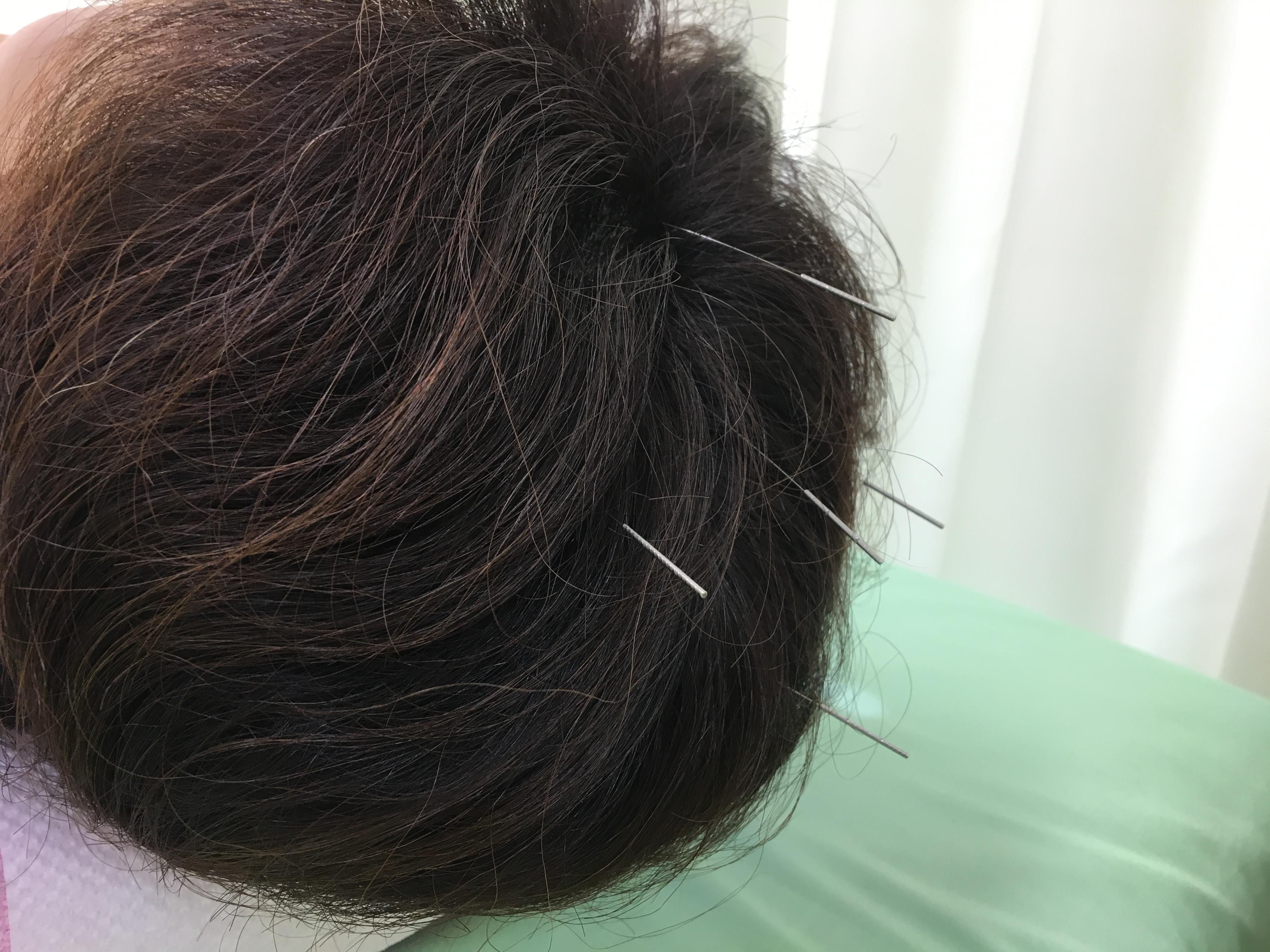 不眠症、浅眠りに効果的なツボ百会、四神総。自律神経や抜け毛にも良いです。