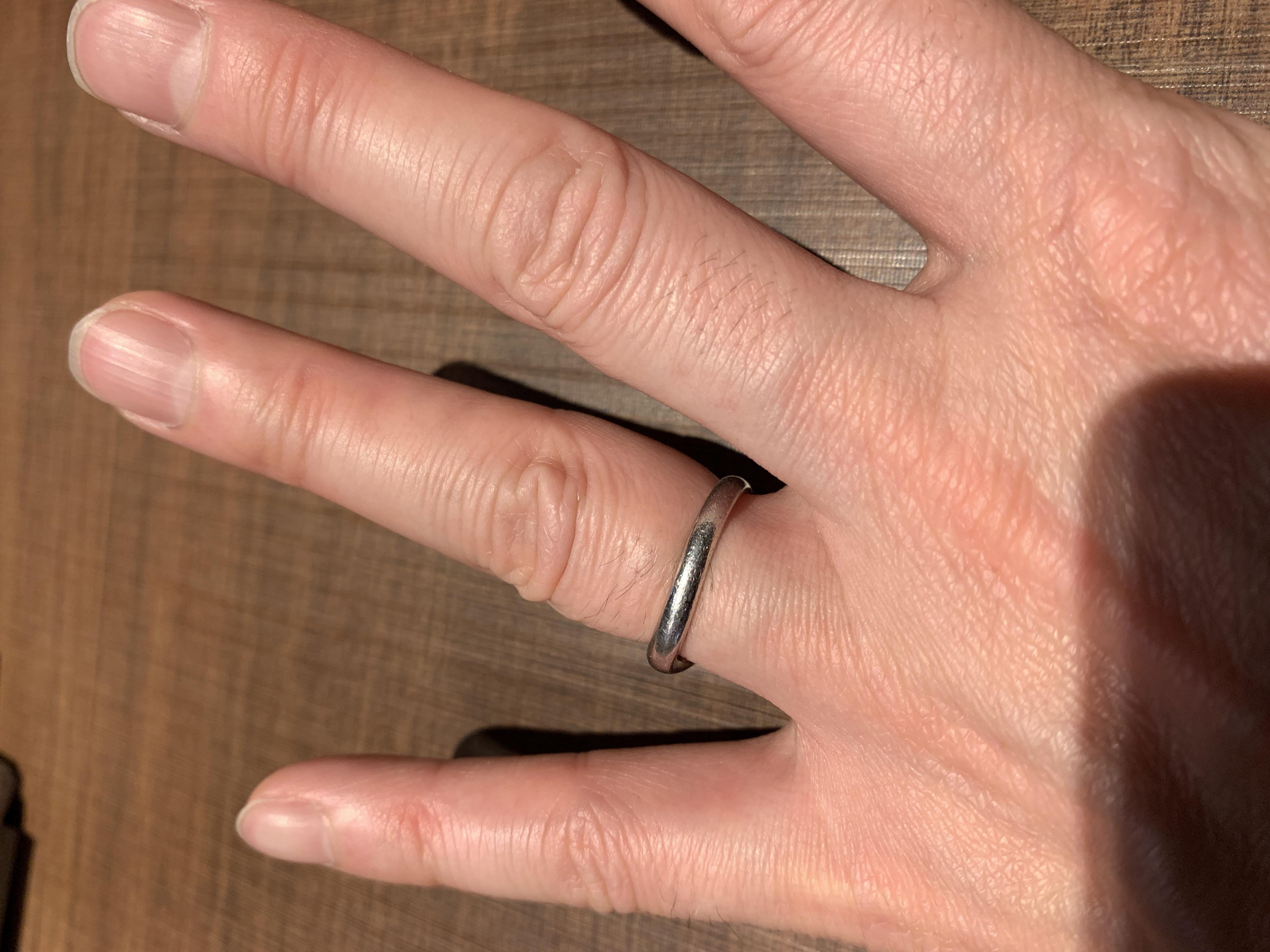 藤井寺市Kさんの事例。10kg痩せると抜けなかった結婚指輪が抜けた!