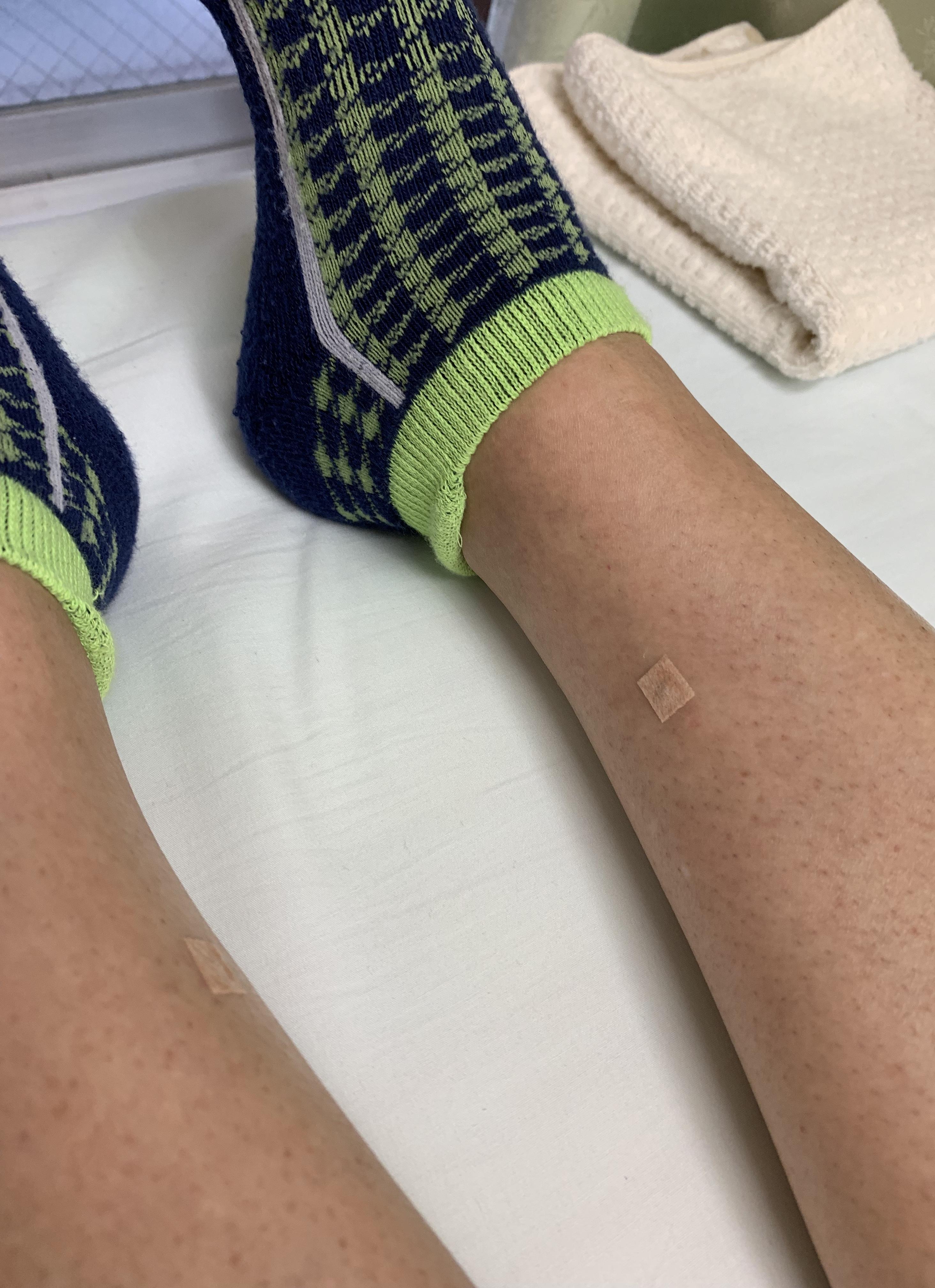 三陰交の置き鍼で夜間に足がつらなくなった症例。(結果には個人差があります)