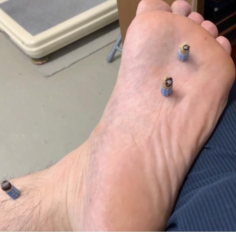 足の裏の灸