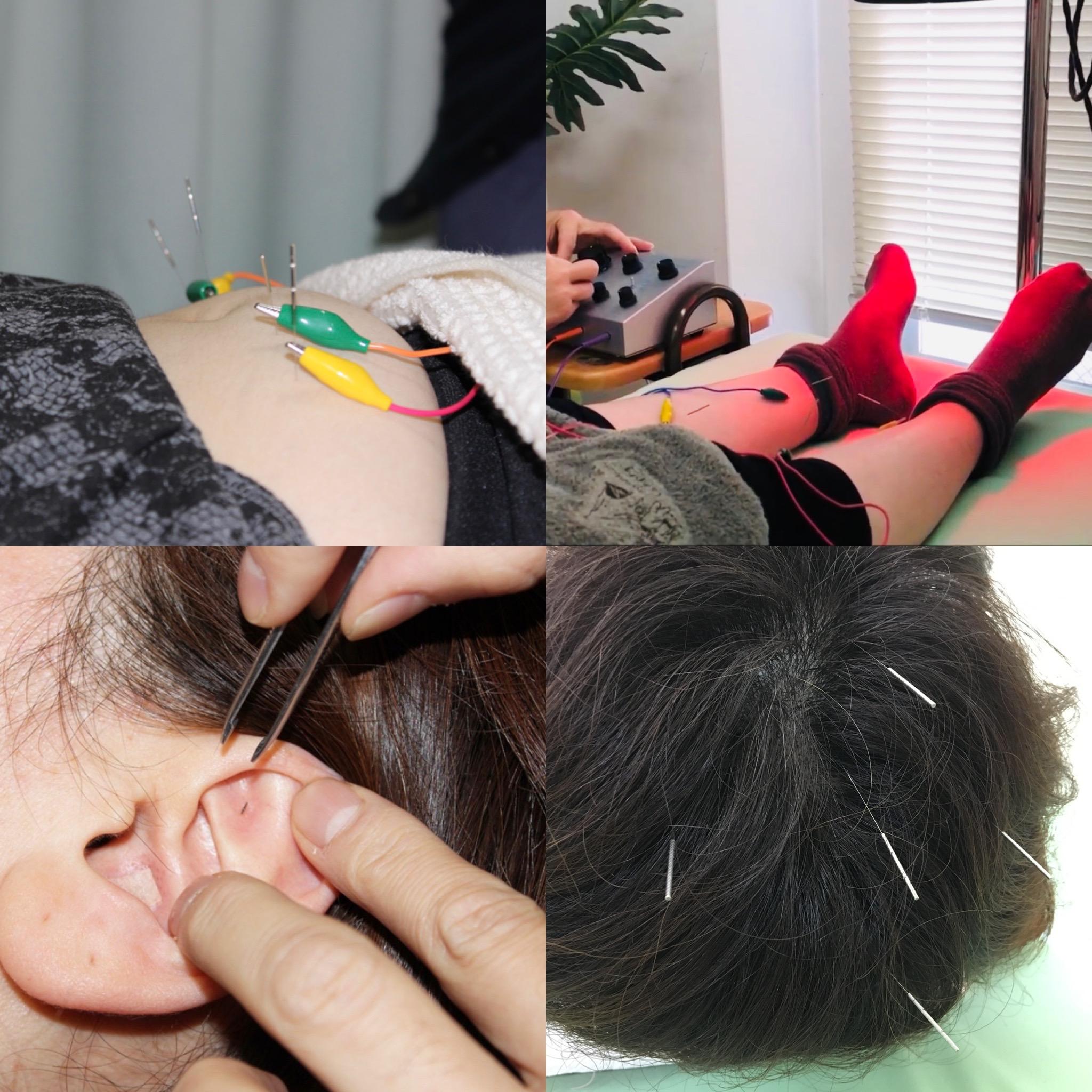 耳鍼ダイエットで夏までに自分の理想を手に入れてください。無料カウンセリング5月22日迄の空き時間です、